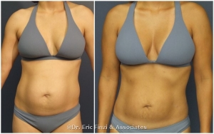Fat Transfer, Liposuction, Chevy Chase Cosmetic Center