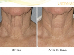 ultherapy-bl0017_beforeandafter_90day_1tx_neck