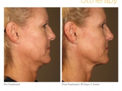ultherapy15mm-0297j-k_before-90daysafter_full