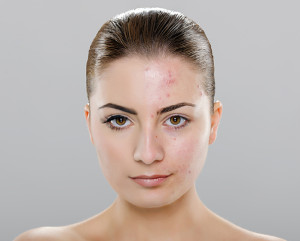 Acne Treatment by Dermatologist at Chevy Chase Cosmetic Center