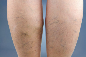 Sclerotherapy Treatment For Spider Veins