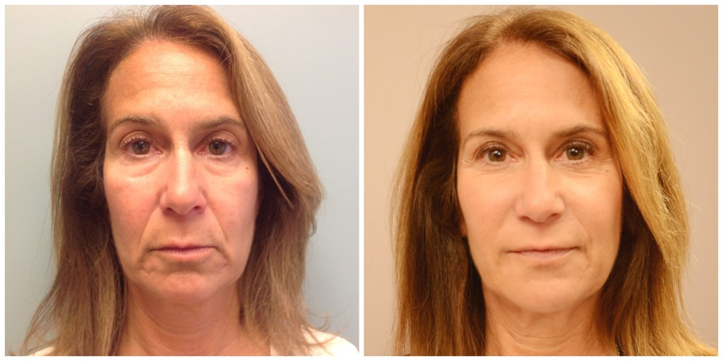 Before and After Skin Resurfacing Laser