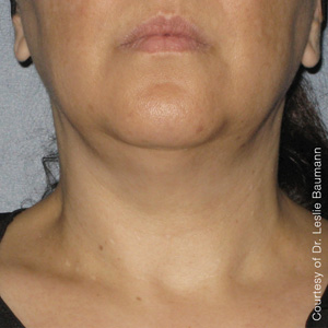 Ultherapy Skin Tightening Before & After 2