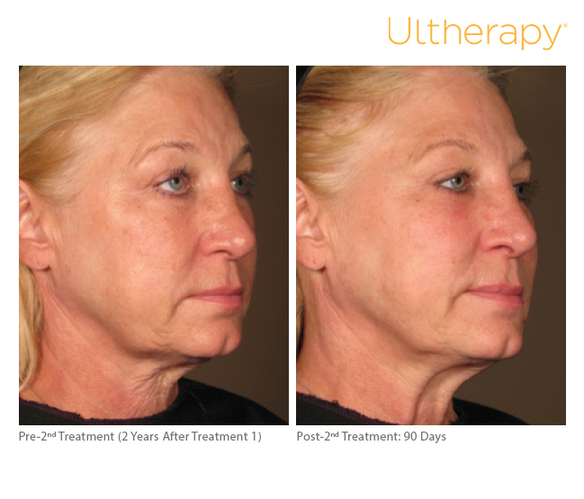 Ultherapy Skin Tightening Before Amp After Chevy Chase Md