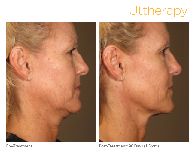 How much does Ultherapy cost