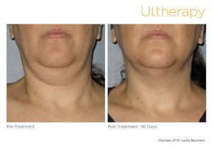 Ultherapy for Turkey Neck Before and After Pictures