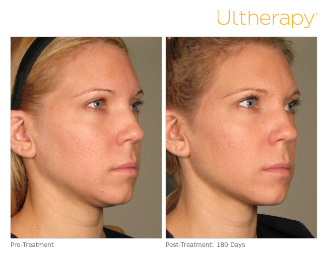 Lift This Summer Without Surgery With Ultherapy Skin