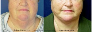 http://www.chevychasecosmeticcenter.com/wp-content/uploads/2015/08/BeforeAfterLipoNeckLady2.jpg