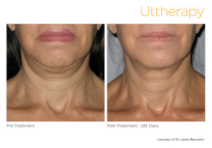 Before and After Ultherapy Pictures