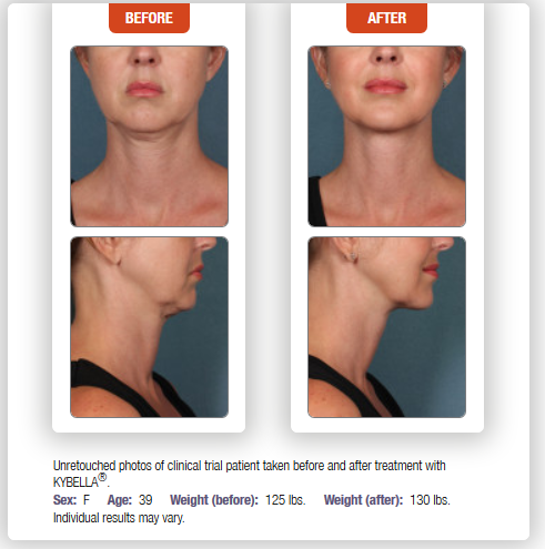 Kybella Chevy Chase Cosmetic Center