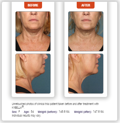 Kybella Before After Photo Chevy Chase Cosmetic Center