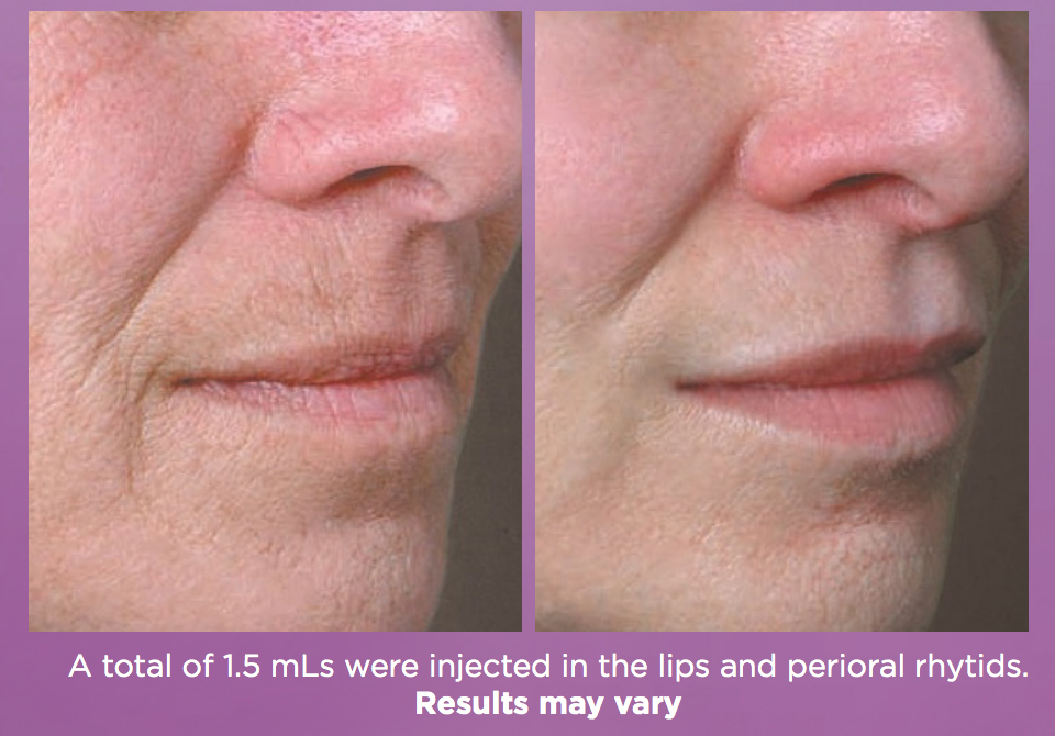 Juvederm Volbella Before and After Treatment