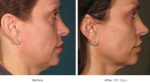 Ultherapy Before and After Treatment pictures