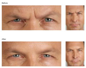 Male Botox Before and After Image