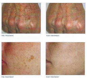 Melasma Brown Spots Treatments Chevy Chase Cosmetic Center