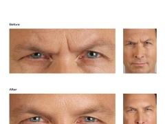 Botox Male 2