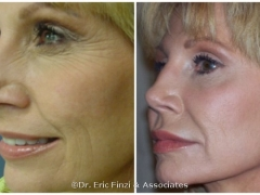 POST JUVEDERM BOTOX 1ST TREATMENT