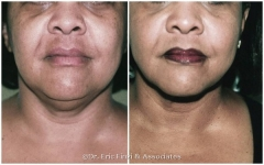 Face, Chin, and Neck Liposuction