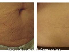 abdomenbeforeLUXIR_1