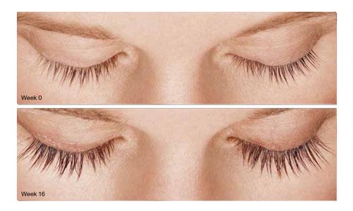 Latisse Lashes How To Make Your Eyelashes Longer Maryland