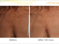 ultherapy_093-026-clb_beforeandafter-180day_1tx_chest
