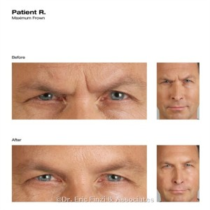Male Botox Before & After at Chevy Chase Cosmetic Center