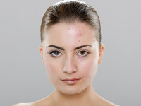 Girl Before Acne Chemical Peel Treatment by Dermatologist