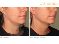 How Does Ultherapy Work