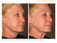 Cost Of Ultherapy
