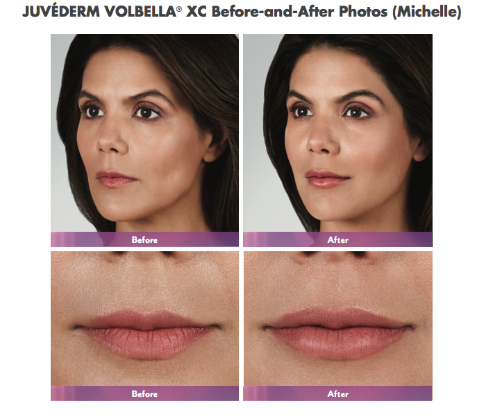 We Are Now Offering Juvederm S Newest Product Volbella Chevy