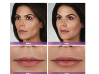 Juvederm Volbella Lip Injections Before and After Image