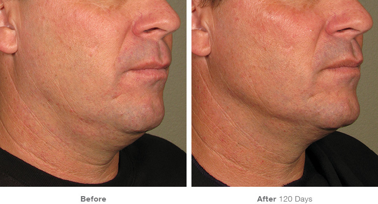 man ultherapy before and after image