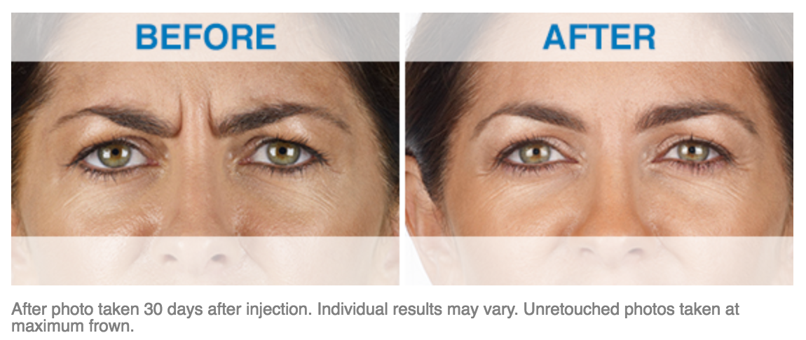 Xeomin Treatment Before and After Photos of Patients