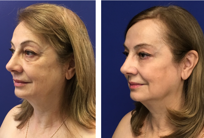 Ultherapy Before and After Pictures Chevy Chase Cosmetic Center