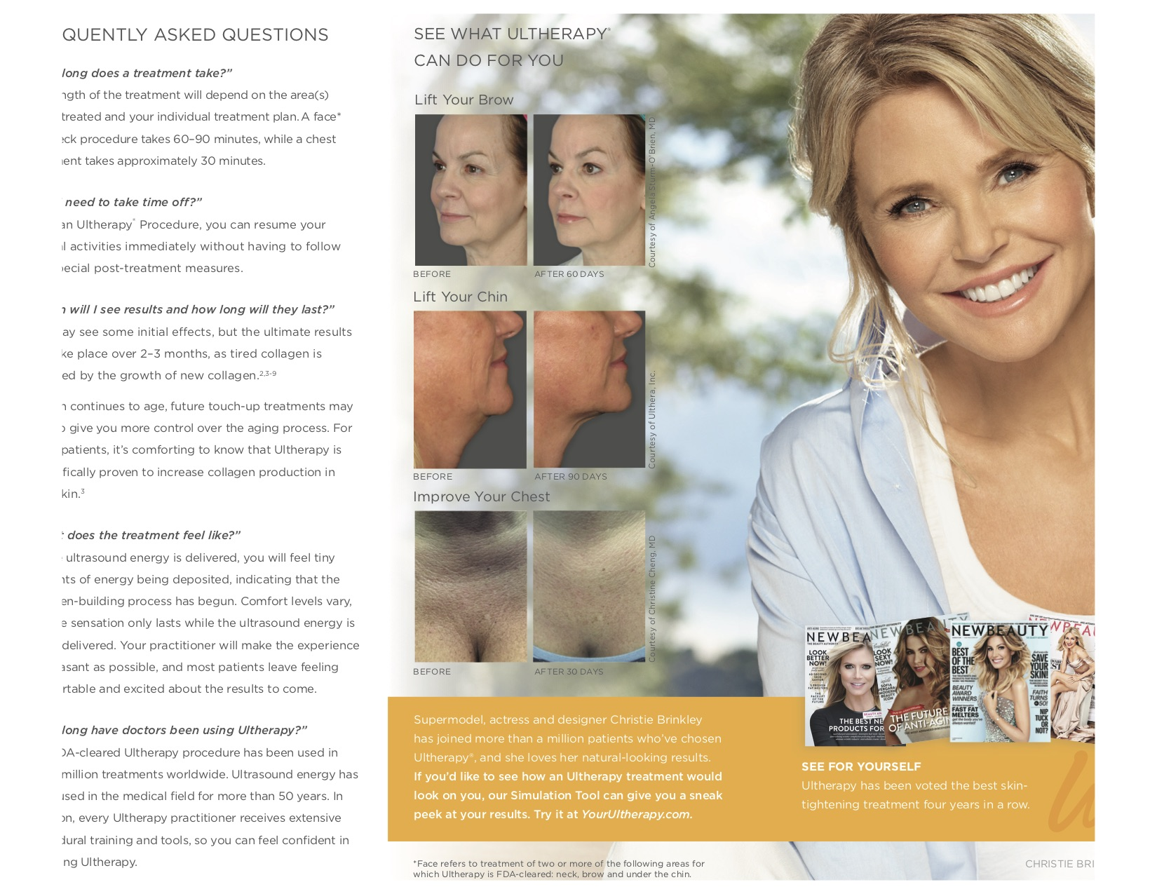 Christie Brinkley Ultherapy Skin Tightening