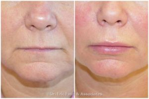 Lips Fat Transfer Before and After Photo